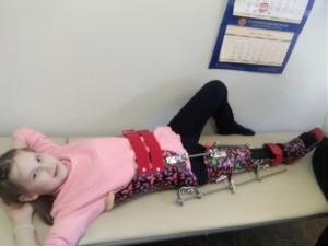 Люда в специализированном аппарате, корсет и лангет на ноге, позволяющий медленно растягивать мышцы ноги.